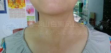 皮肤科护士乱用药致病情加重,求助华山医生